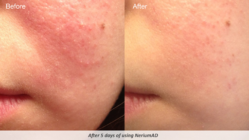 Nerium AD Age Defying Treatment Review